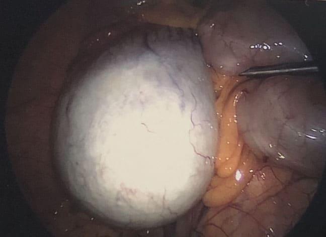 Dermoid Ovarian Cyst