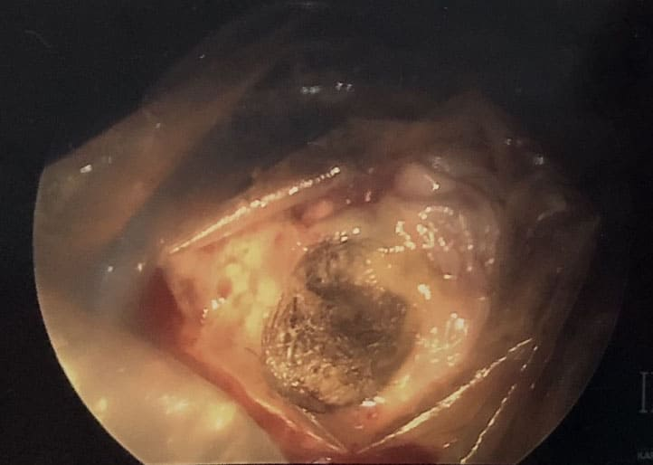My Experience Having a Dermoid Ovarian Cyst Removed During ...